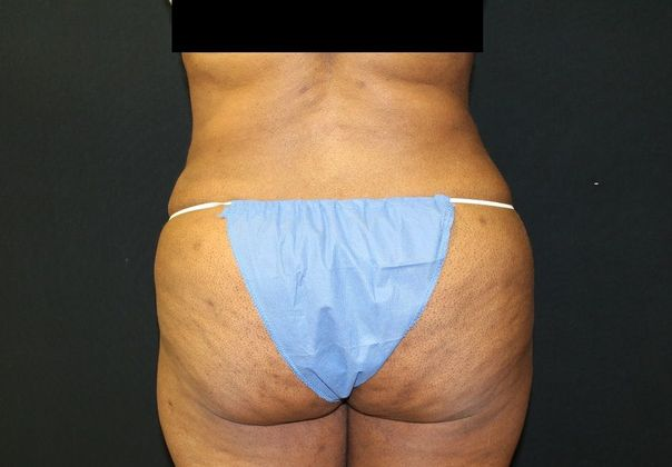 After: liposuction from back
