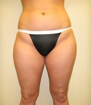 Before VASER liposuction