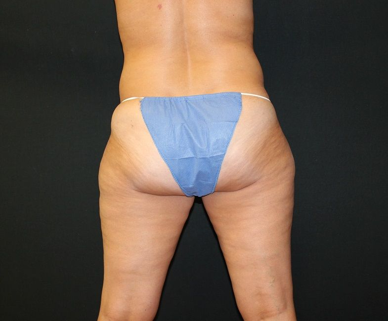 Case 29 Liposuction Abdomen, Flanks, Hips and Inner and