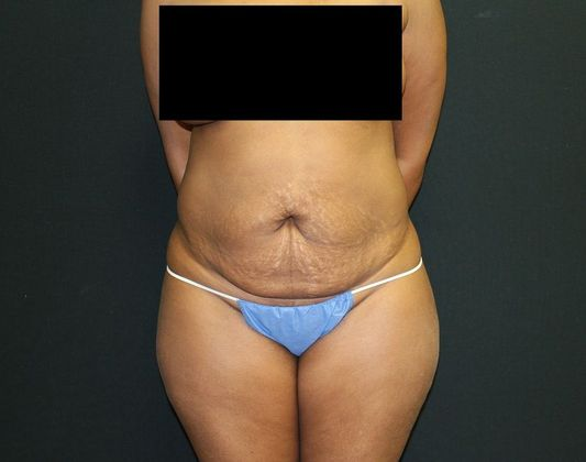 Before: tummy tuck (from front)