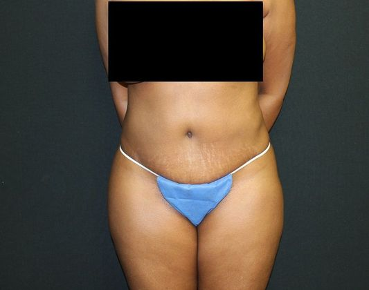 After: tummy tuck (from front)