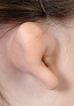 Patient's ear before aural atresia repair