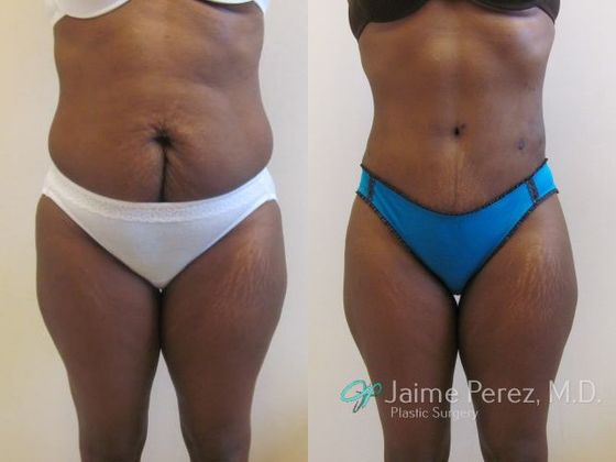 Tummy Tuck to Repair Vertical C-Section Scar - Abdominoplasty/Tummy