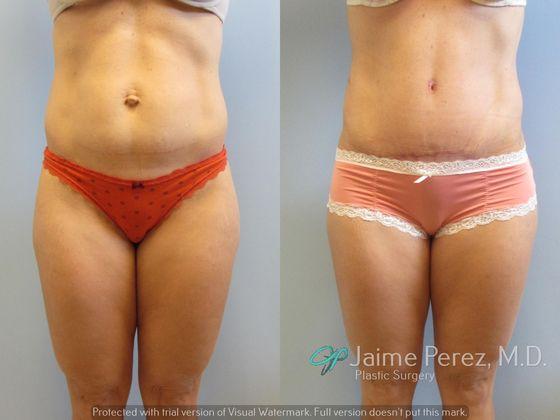 Tummy Tuck with Hernia Repair - Abdominoplasty/Tummy Tuck - Before