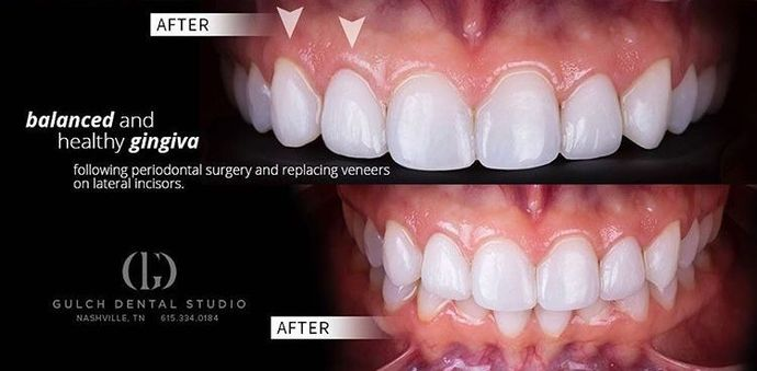 Case 1 Porcelain Veneers Before And After Gallery