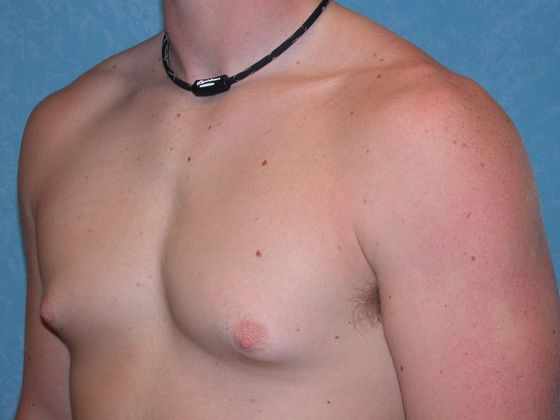 Gynecomastia, before.