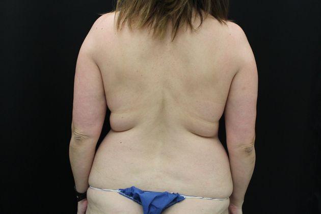 Liposuction – New Orleans, LA – Northshore Plastic Surgery