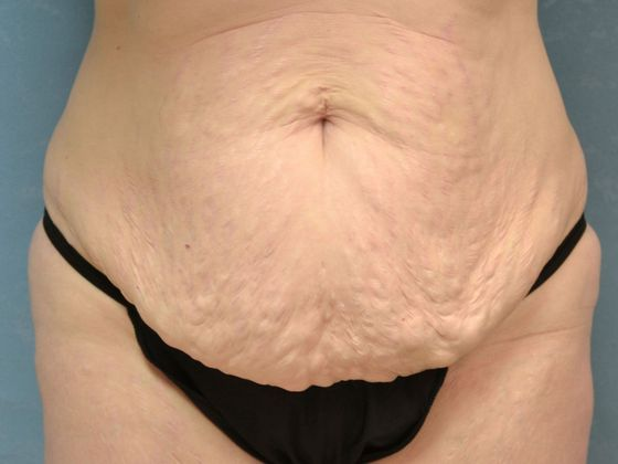 Tummy tuck, before.