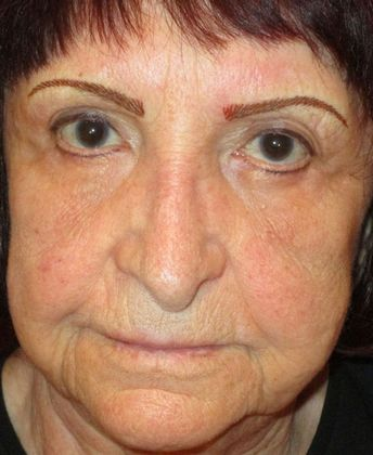 Endoscopic Brow Lift For Sun City Resident Brow Lift