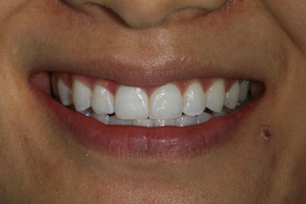 Teeth Whitening In Boston Zoom Teeth Whitening Before And After