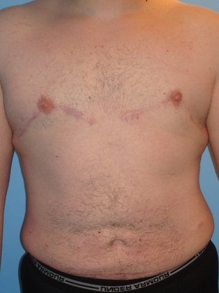 an overview of gynomastia Gynecomastia gynecomastia is the condition in which male breast tissue is more  substantial than desired this can be the result of many different factors, but.