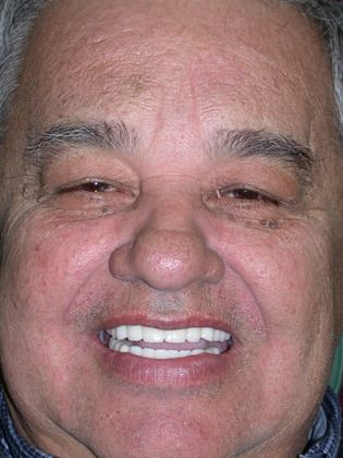 After dental implants photo