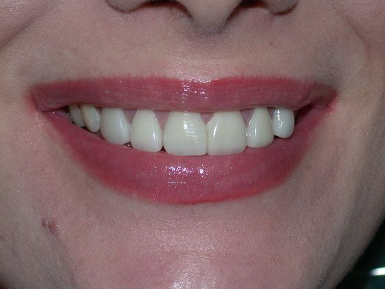 After Dental Crowns Photo