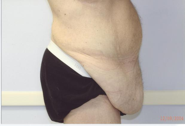 Before post-bariatric body contouring