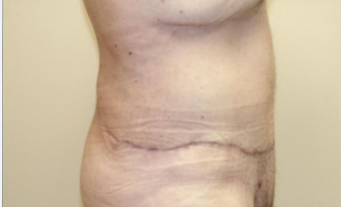 After post-bariatric body contouring
