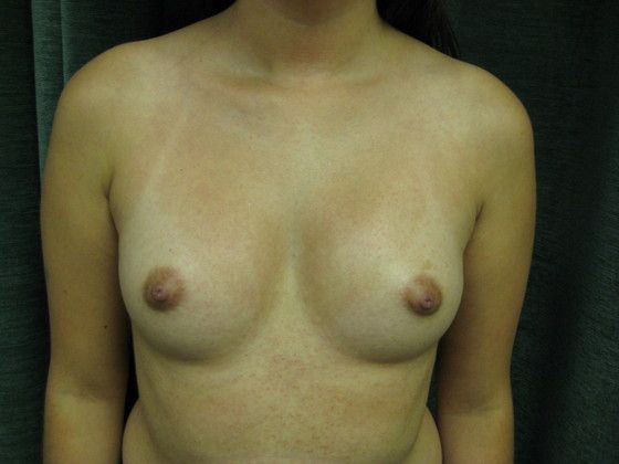 breast implant before photo
