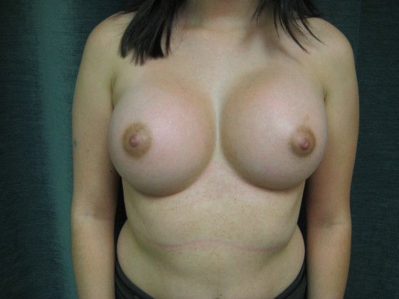 breast implant after photo