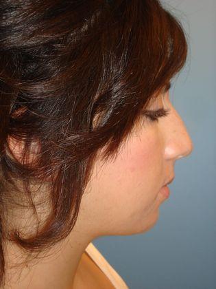 Before rhinoplasty