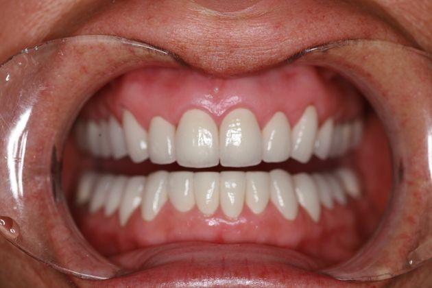 Tmj Bite Correction Full Mouth Rehabilitation In