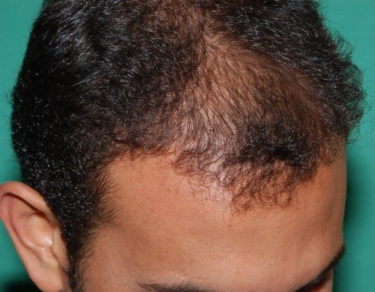 haircuts for frontal balding frontal hair loss fue hair transplant result for frontal 3978