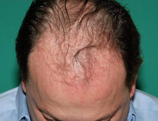 Man's scalp before hair restoration