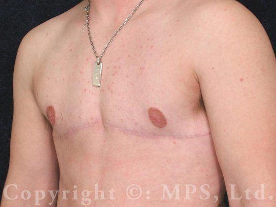"Transgender (F to M) Mastectomies (""Top Surgery""): Case 9"