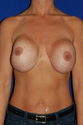 before implant revision surgery