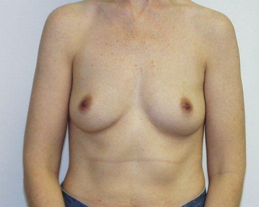 breast lift kansas city