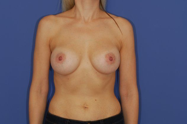 after breast augmentation photo