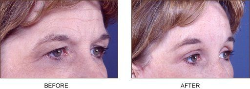Endoscopic Browlift Patient