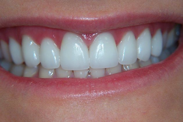 after porcelain veneers