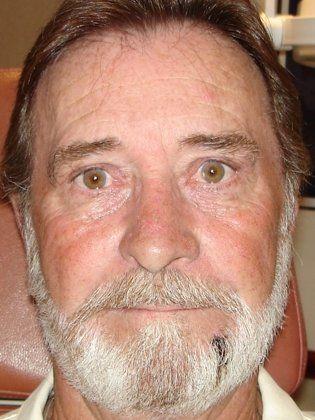 Upper Eyelid Surgery Blepharoplasty Sun City West Az
