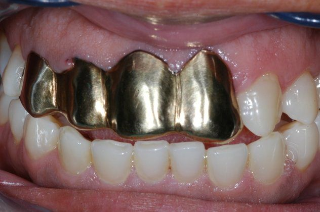 White Gold Crown Tooth...