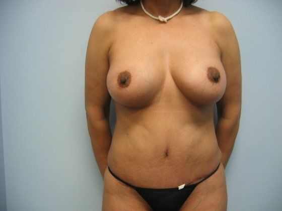Extreme Breast Growth-5748