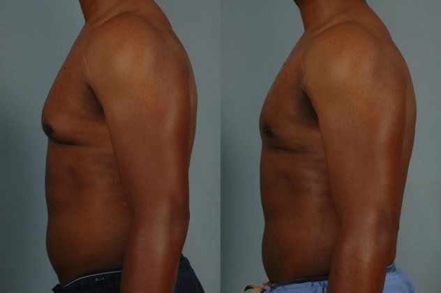 before and after gynecomastia