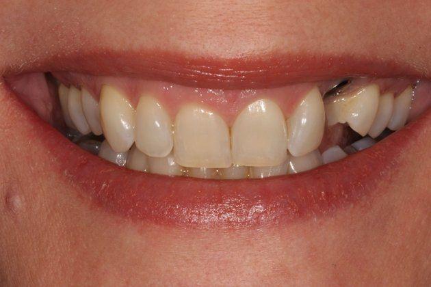 how to fix canine teeth