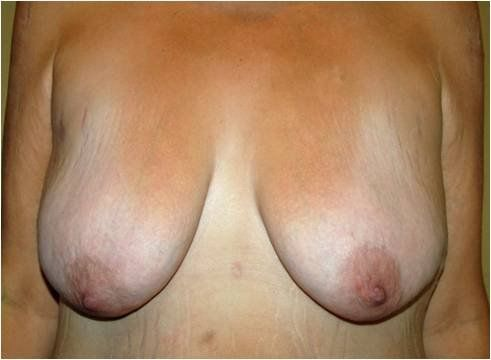 weight loss before breast augmentation