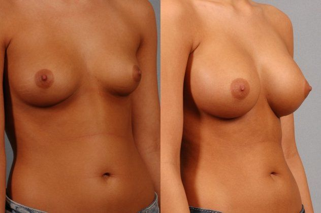 Before and after images of a breast augmentation patient.