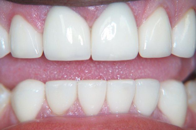 After crowns and veneers.