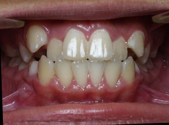 crowding and anterior cross bite crowdingcrooked teeth
