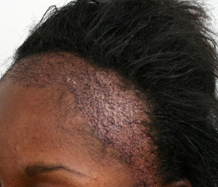 Dr Dorin - FUT for Traction Alopecia - Case Studies