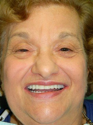Photo of patient with zirconia restorations
