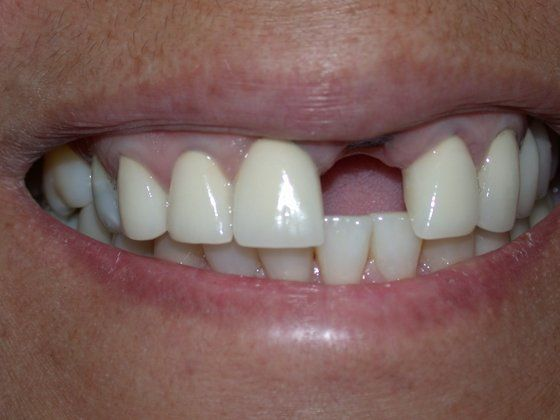 Before dental implant photo