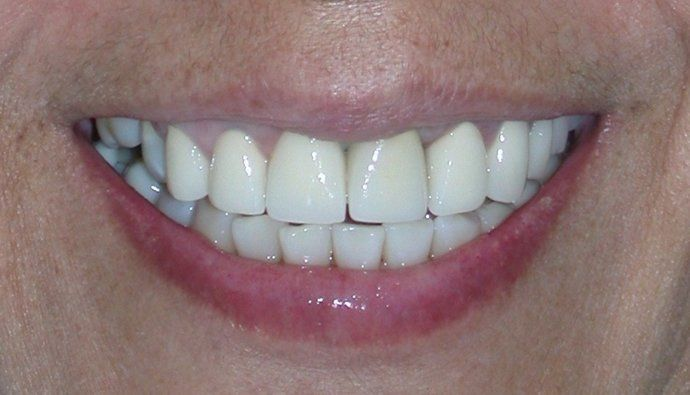 after dental implant photo